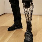 Exo Prosthetic Leg by William Root